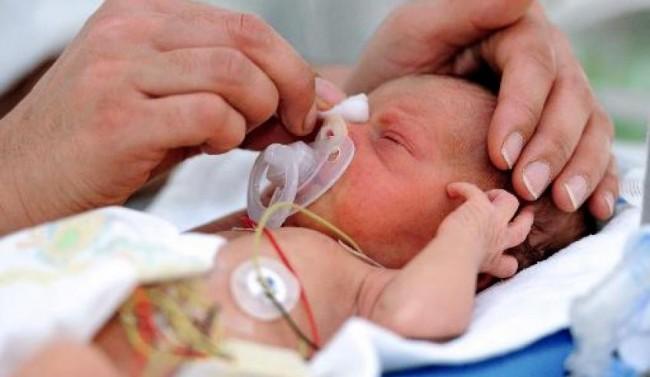 Toulouse : Opération réussie sur un bébé cardiaque