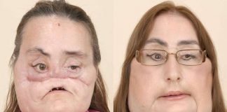 Connie Culp : La première Américaine greffée du visage est morte