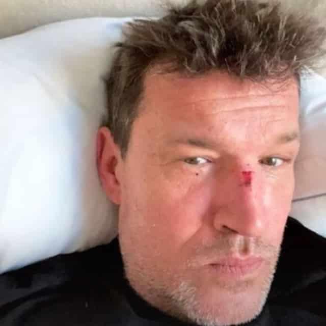 Benjamin Castaldi blessé au visage : que s'est-il passé ? (PHOTO)