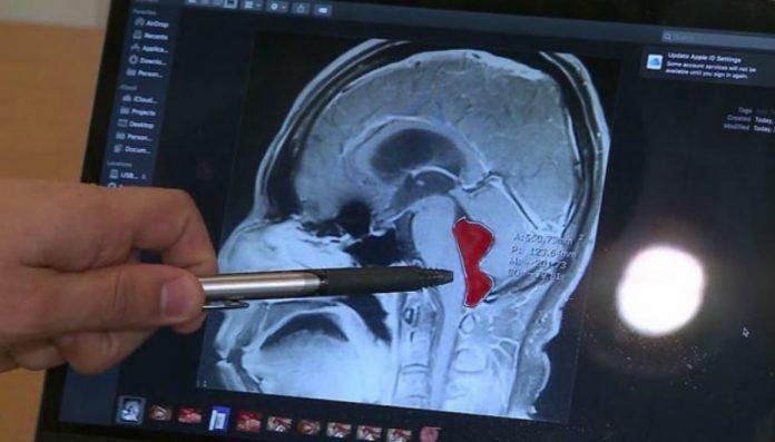Video : Victime de violentes migraines, il découvre qu'un ver solitaire vit dans son cerveau depuis 10 ans