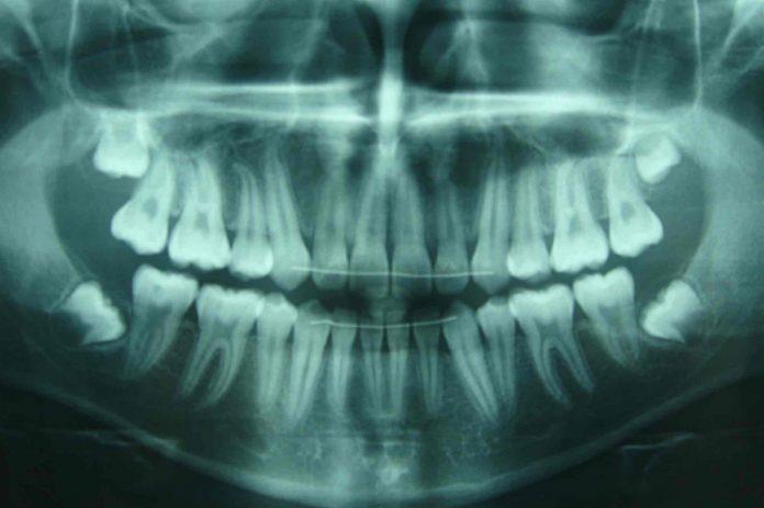 Il meurt 15 jours après son opération des dents de sagesse (détail)